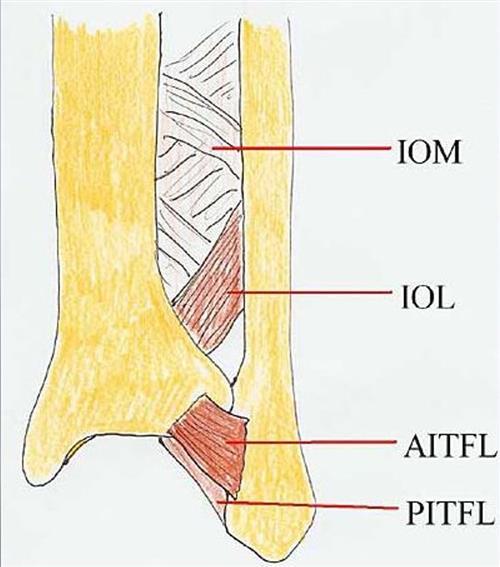 High Ankle Sprains