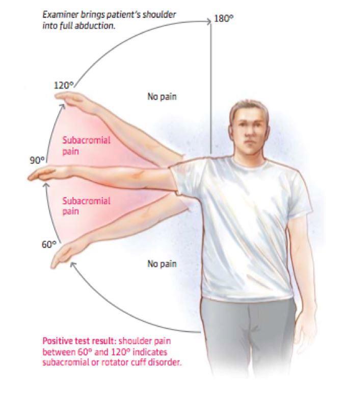 Shoulder Bursitis